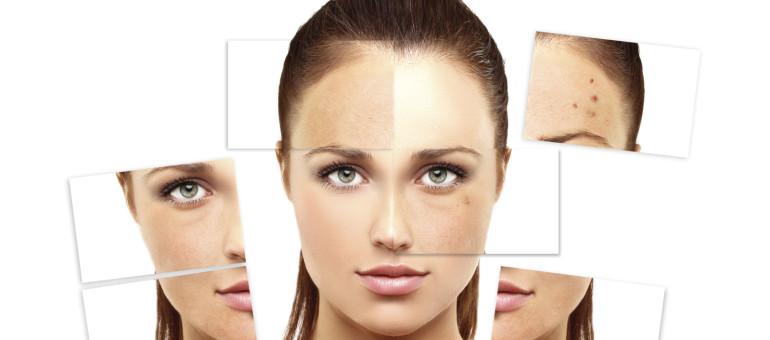 acne myth 1