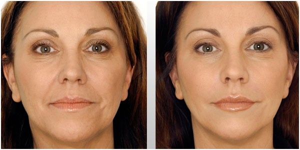 Liquid Facelift Restylane Before After