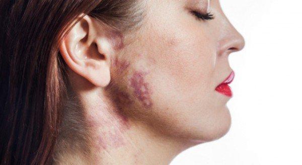 portwine-birthmark-on-face676x370-600x328